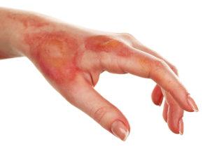 Skin Burns Treatment