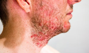 Folliculitis Treatment