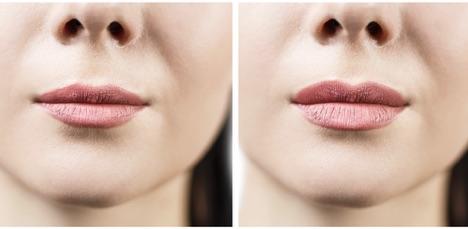 Lip Filler Treatment- Philadelphia PA & Main Line PA