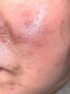 Acne, Treatment, Therapy - Philadelphia