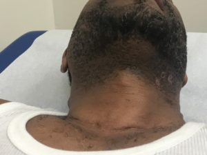 Beard bumps