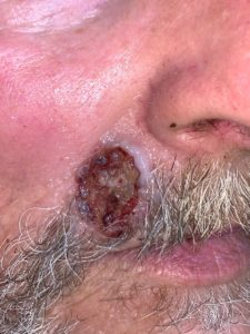 basal cell carcinoma Philadelphia and Philadelphia Mainline Pa