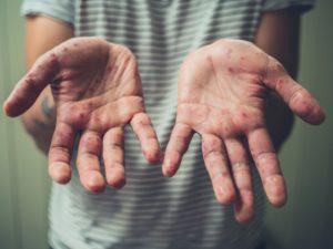 hand foot rash