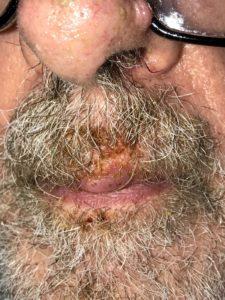 impetigo seborrheic dermatitis