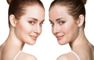 pore treatment reduction
