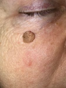 Seborrheic Keratosis Treatment Philadelphia Pa Amp Main Line Pa