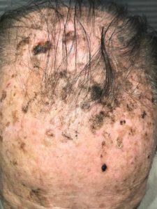 sun damage scalp