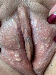 vaginal cysts