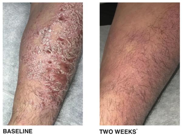Psoriasis Treatment- Philadelphia PA & Main Line PA